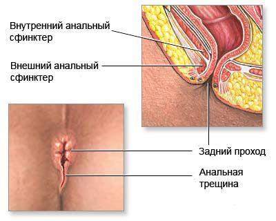Anal Sex eksempel etiopiske porno modell
