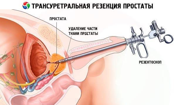 prostata operasjon turp
