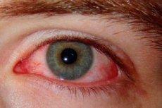 klamydia i øyet